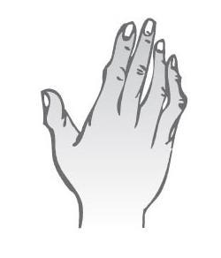 Kónická ruka