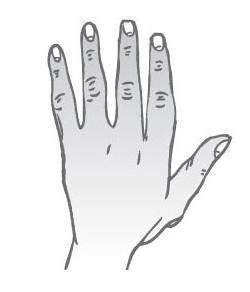 Uzlovitá ruka